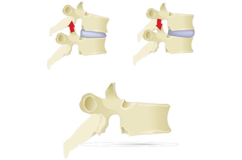 terapia colonna vertebrale parma